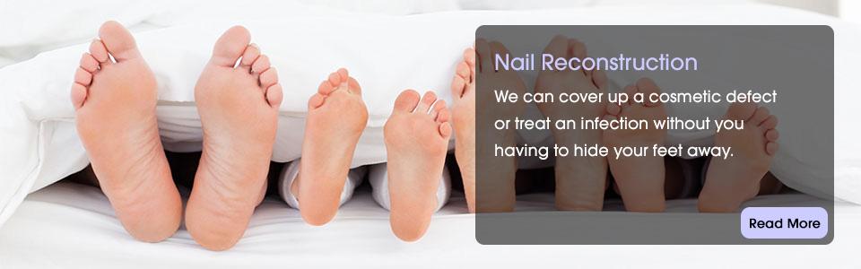 TipToeBanner-Nail-Reconstruction